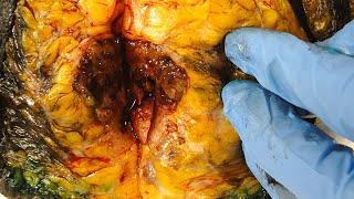 Cancer Tissue Brca Genes Biopsy Lumpectomy Mastectomy Mammogram Treatment
