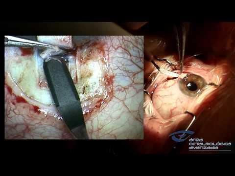 Glaucoma Esclerectomia Profunda