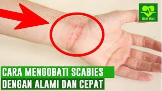 sering gatal gatal terutama saat malam hari?? bisa jadi itu penyakit kudis atau penyakit skabies. yu.