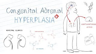 What is Congenital Adrenal Hyperplasia (CAH)?