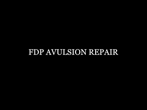 FDP Avulsion Repair