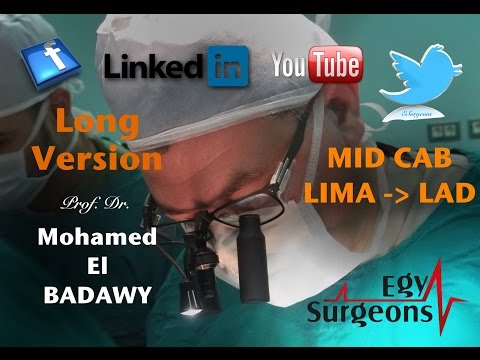 Open Heart Surgery , M. Albadawy MD Egypt ( Long Version )