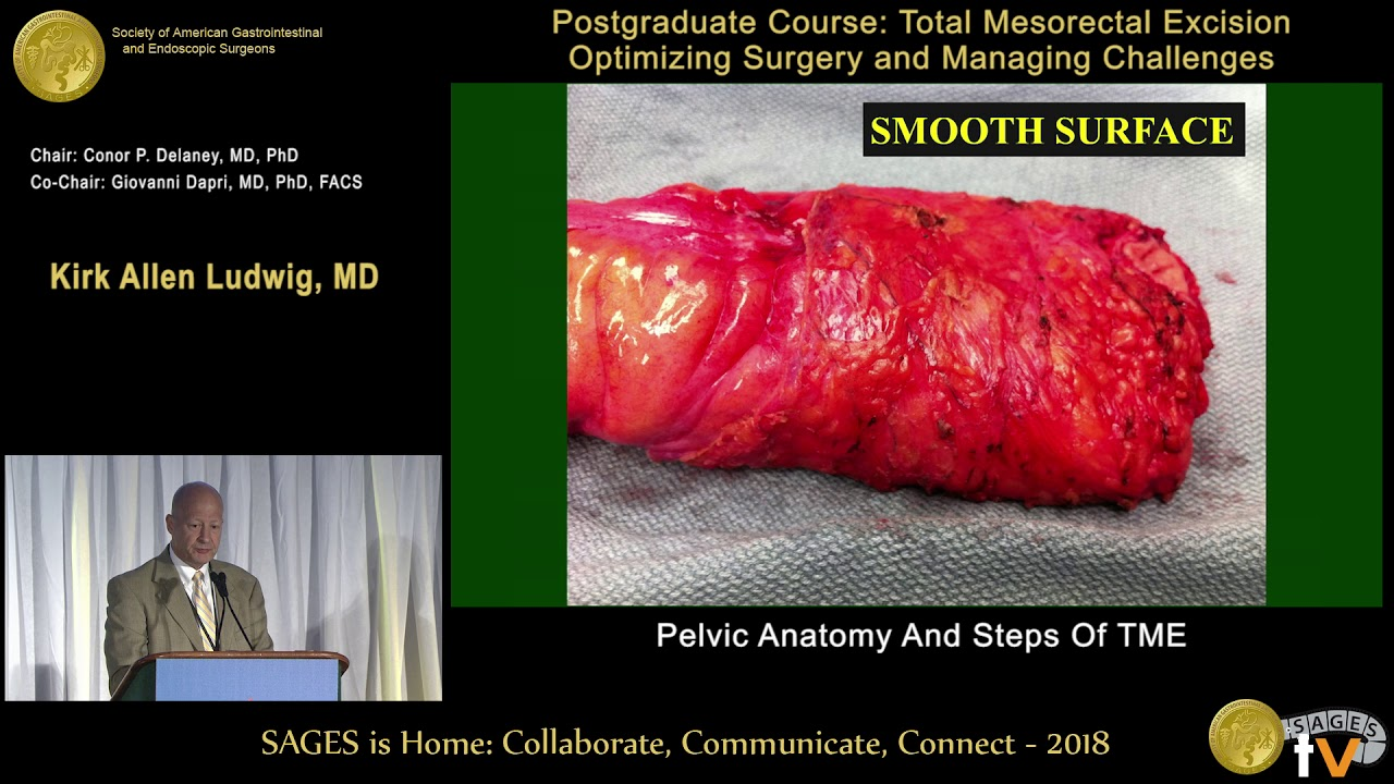 Colorful Anatomy Of Pelvic Surgery Gift - Anatomy and Physiology ...