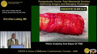 Download Pelvic anatomy & steps of TME