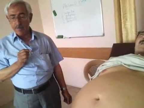 Baghdad medical city, clinical examination,by prof. Hamid Aljanabi(Abdomen exam.)