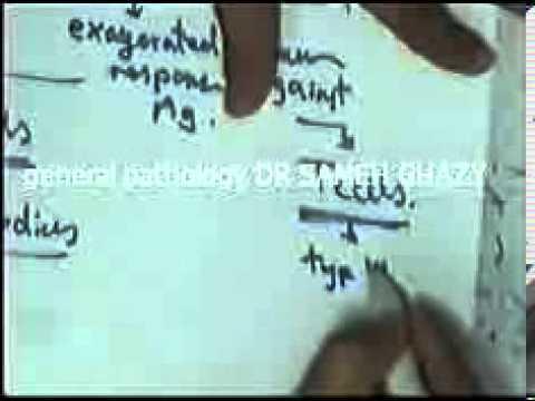 general pathology 28 : DR SAMEH GHAZY immunity