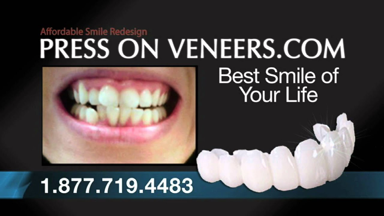 press on veneers complaints reviews and ratings youtube