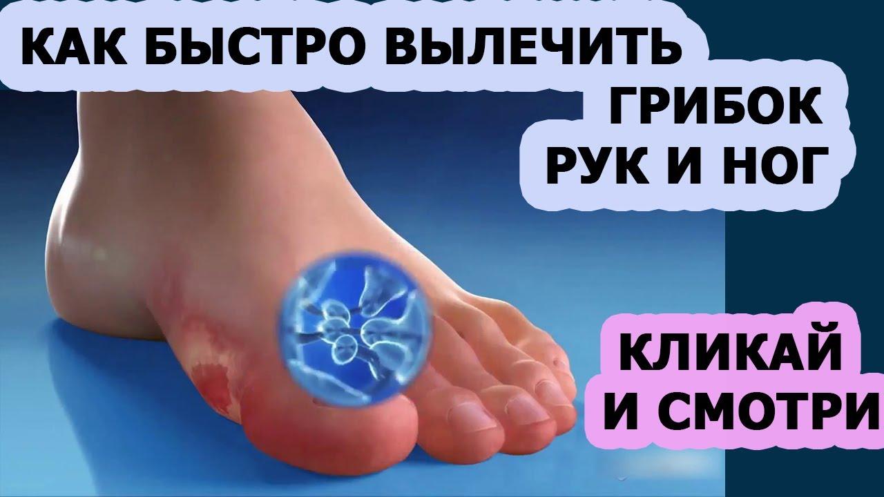 Как быстро вылечить грибок ногтей на ногах и руках в домашних условиях
