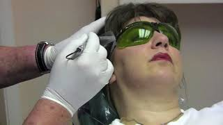 TMJ Treatment by low level laser therapy