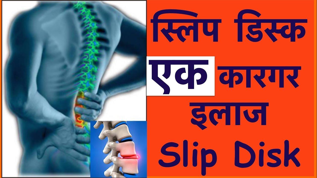 Slip Disc Treatment स्लिप डिस्क का कारगर इलाज 100 Slip