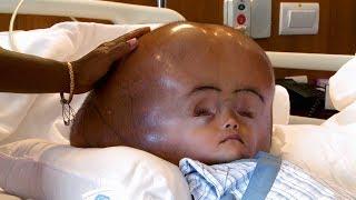 Son crâne mesure 94 cm de circonférence !