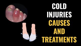 Cold Injuries Causes and Treatments