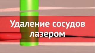 Лазерное удаление капилляров и сосудов(, 2014-09-16T12:11:36.000Z)