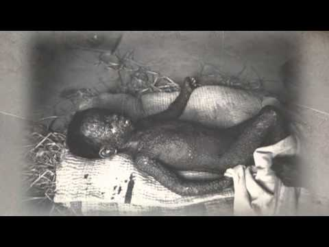 Smallpox Through Time 01