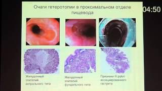 01 Гастроэзофагеальная рефлюксная болезнь   Кашин С В