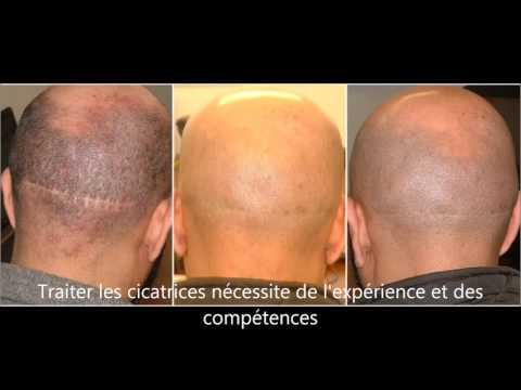Réparation de cicatrices par MSP chez Vinci Hair Clinic France