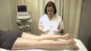 Clínica escleroterapia cosmética