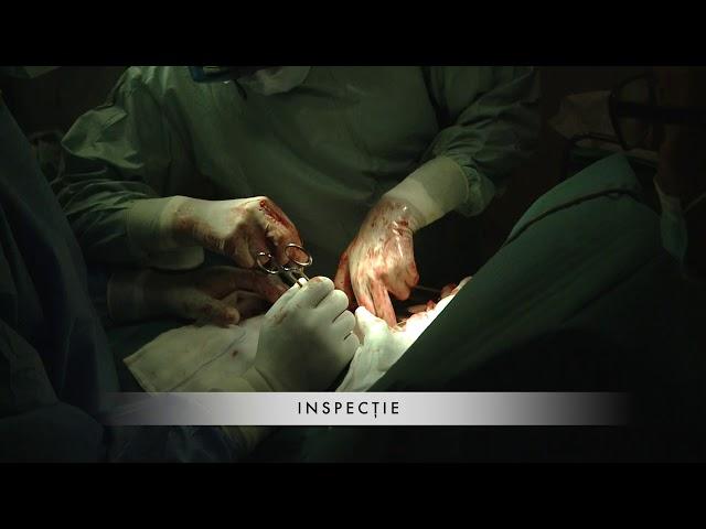 Operatie Metastaza Pulmonara