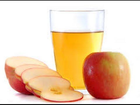 Cuka sari apel dapat digunakan untuk menyebuhkan luka memar