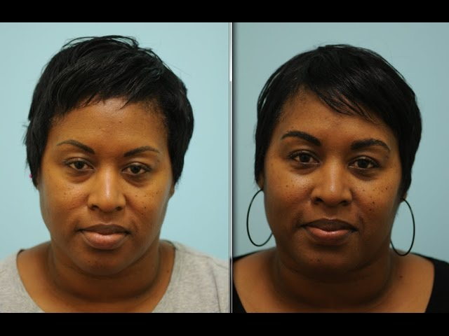 African-American Eyebrow Hair Transplant Testimonial in Dallas, Texas