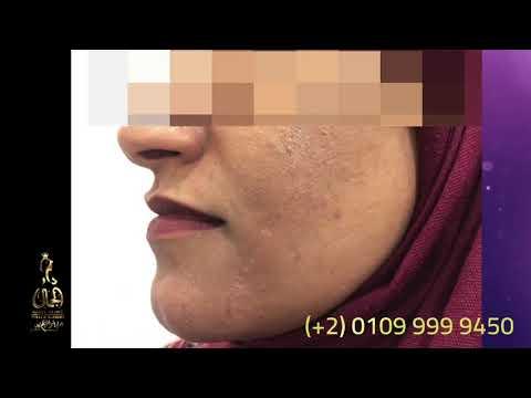 علاج الندبات وجروح الوجه مع الدكتور ابراهيم كامل في مركز دار الجمال في القاهر