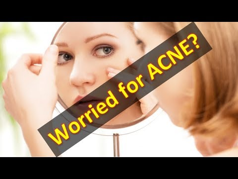 Acne Treatment at Home, Acne Removal and Acne Scare Removal Remedy