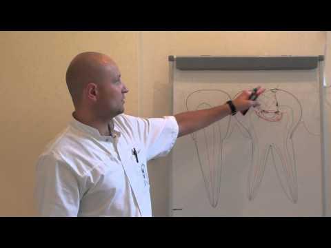 Лечить ли молочные зубы от кариеса: сравним пломбирование