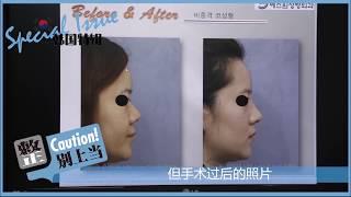 에스원성형외과 노복균원장 코성형수술 콧대코끝성형 코재수…