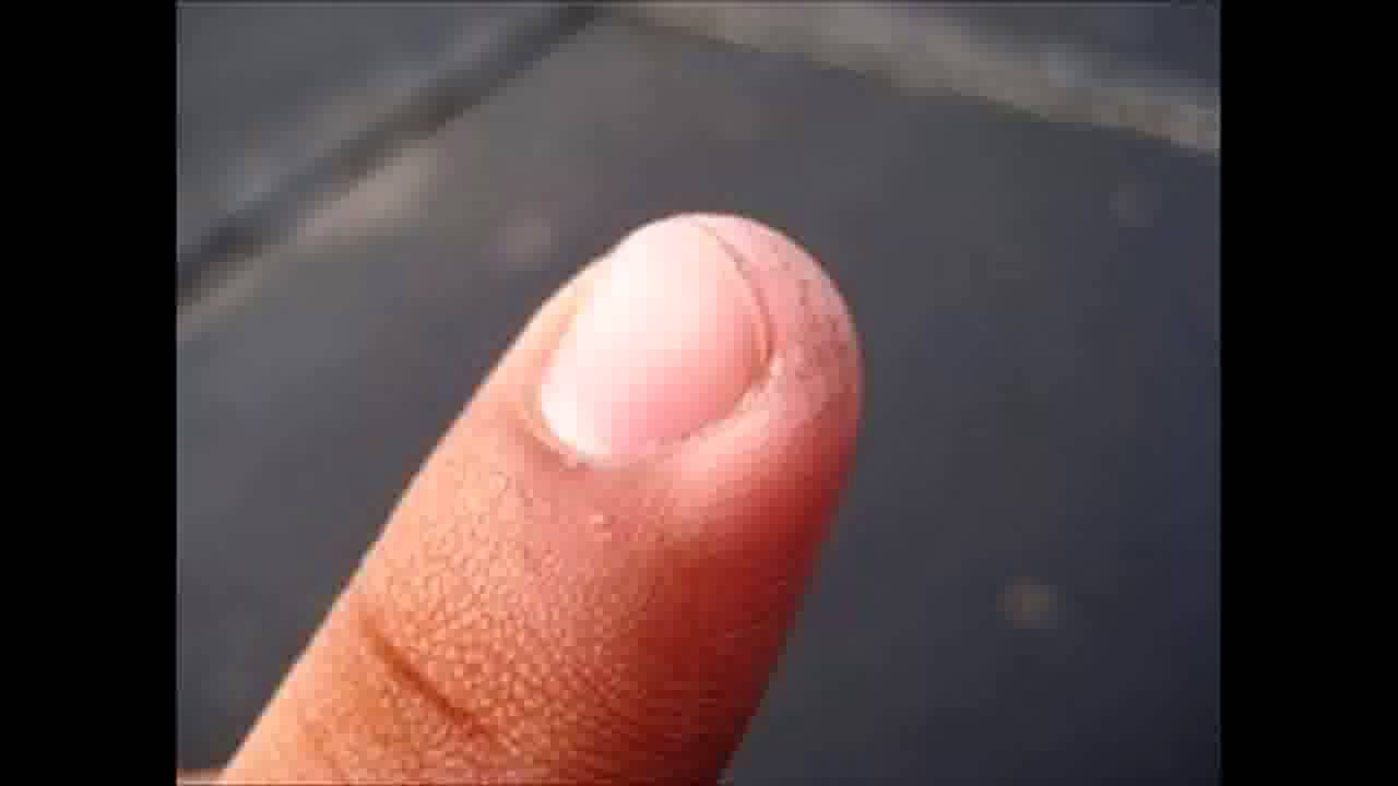 How to Spot Different Types of Fingernail Fungus - YouTube