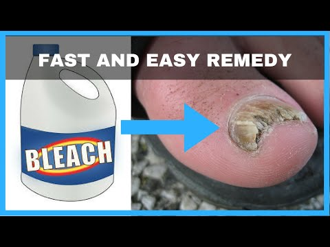 Quick Tips: How to Remove a Splinter from YouTube · Duration:  17 seconds