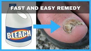 How to Get Rid of Toenail Fungus with Bleach - Toe Fungus Journey