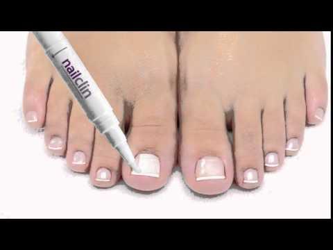 Nailclin- Get Rid of Toenail Fungus
