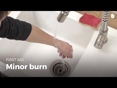 First Aid: Minor Burn | First Aid
