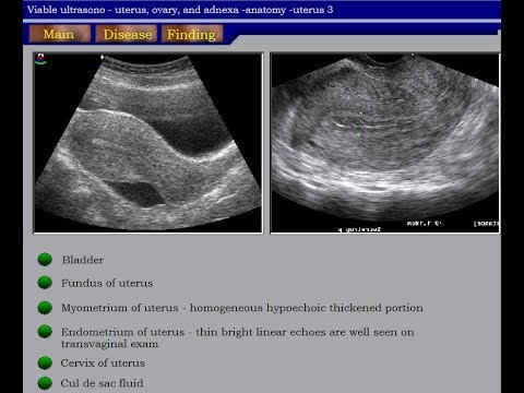 Ultrasound Course of Gynecology Part 01  YouTube