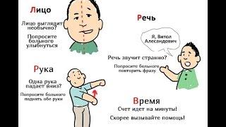 Причины Инсульта; Инсульт Лечение