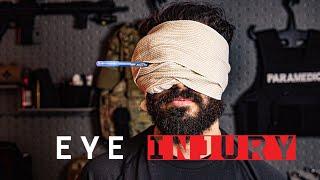 Eye Injury First Aid