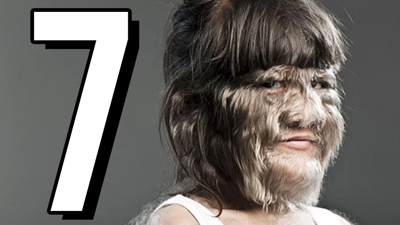7 wyjątkowo dziwnych i przerażających CHORÓB  *DRASTYCZNE*