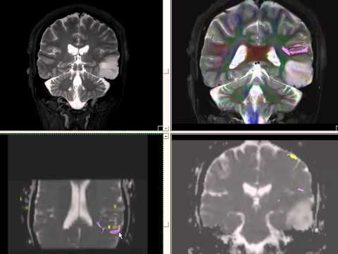 functional MRI and DTI (tractography) in practical use