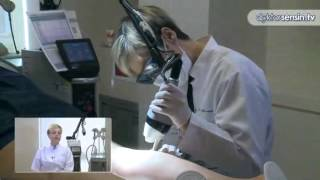 Cilt çatlakları Fraksiyonel Lazerle nasıl tedavi edilir?