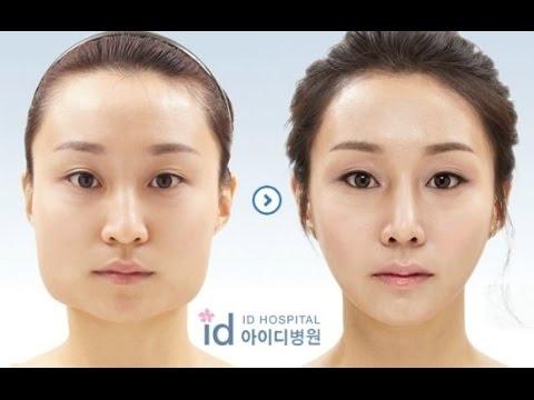 Korelilerin Estetik Ameliyati Oncesi Ve Sonrasi Korean Plastic Surgery Before After