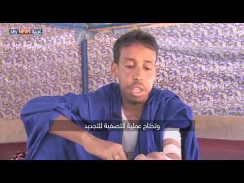 الناه شاب موريتاني يسعى للحصول على كلية  - نشر قبل 2 ساعة