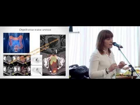 Онкология прямой кишки: причины, диагностика, лечение