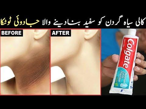 How to get Rid of Dark Neck in 3 Days Toothpaste, Aleovera gel & Coffee - Dark Neck Whitening Remedy