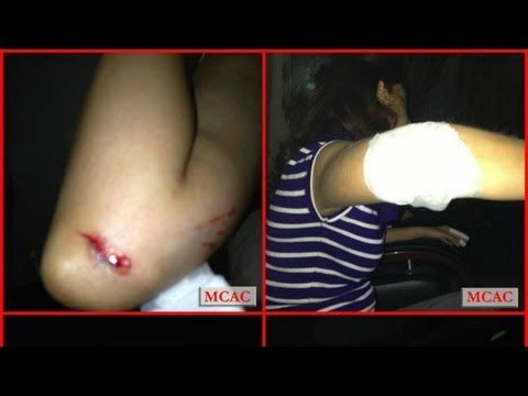 Woman attacked in kidnapping attempt in Malaysia