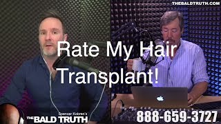 Bald Truth FRIDAY! June 1st, 2018 - Rate My Hair Transplant