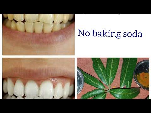 दाँतो-को-सिर्फ-5-मिनट-में-सफेद-करने-के-अचूक-उपाय।-no-baking-soda.-home-remedies-for-white-teeth.