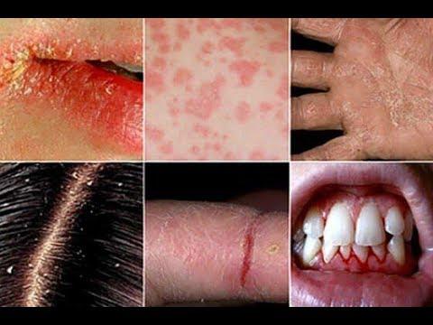 АВИТАМИНОЗ , гиповитаминоз.. Чем опасен ?Что делать ? ( симптомы ,признаки,лечение .)Доверяй Но про