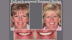 """What Is An Implant Retained Bridge or """"All-On-Six"""" 
