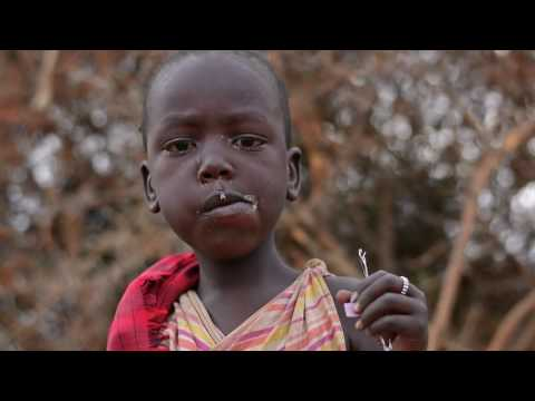 FGM - Female Genital Mutilation