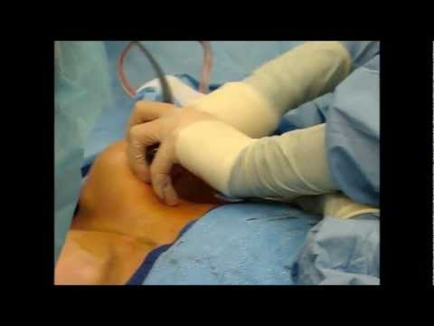 periareolar breast augmentation with silicone implants